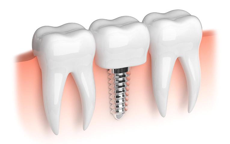 Osteointegrazione