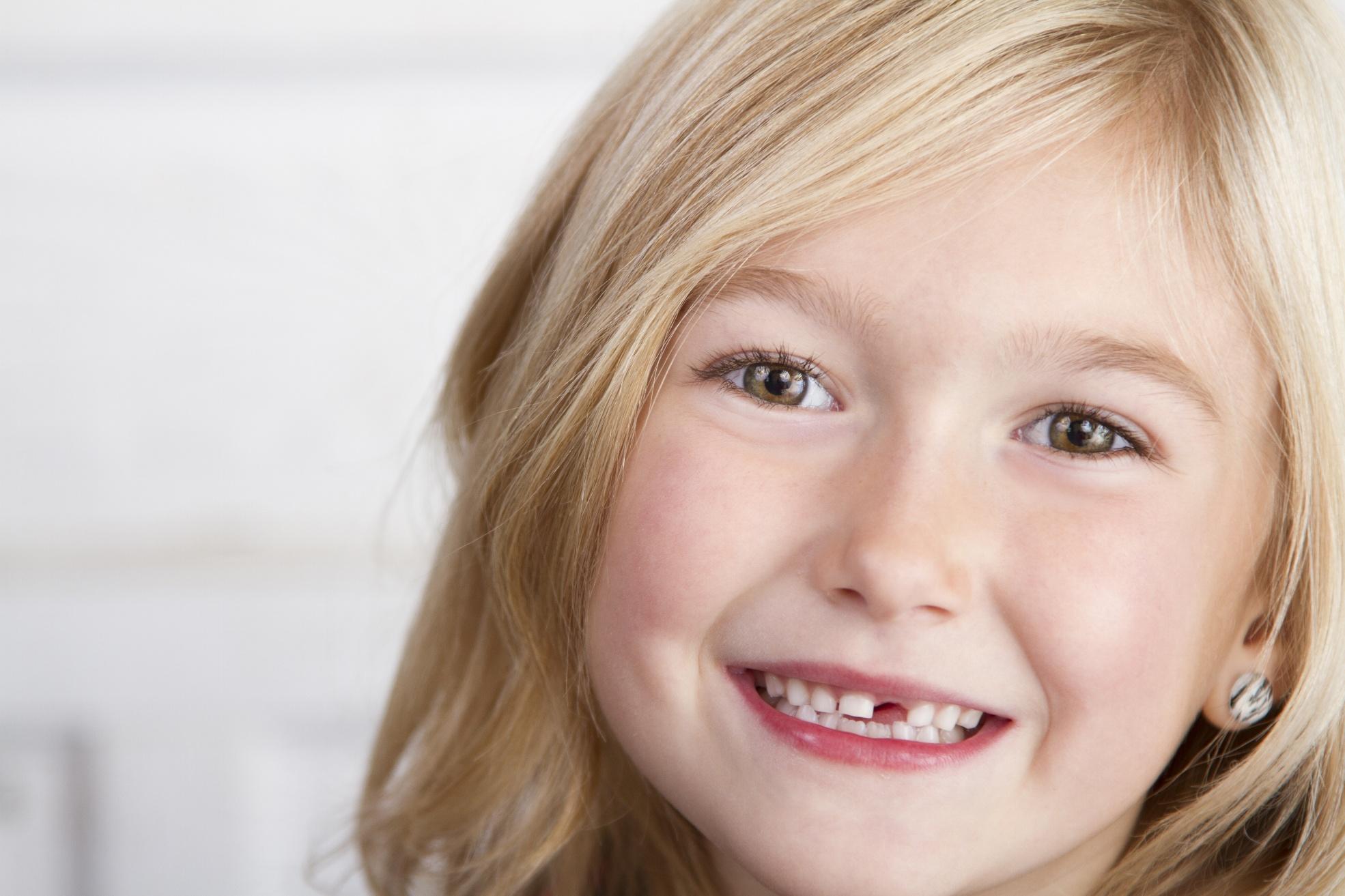 carie e denti da latte